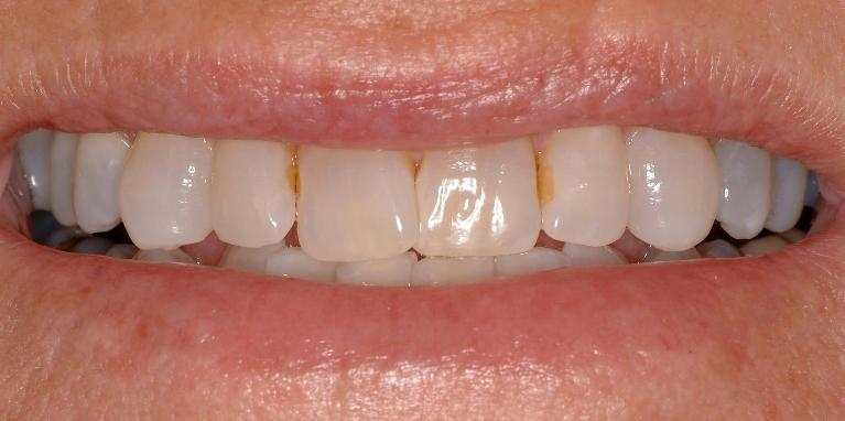 Cerec-Crowns-Before-Image