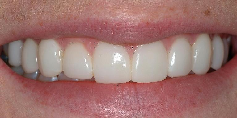 Correcting-Discolored-Teeth-After-Image