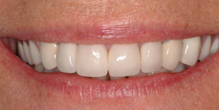 Replacing-Old-Crowns-Missing-Teeth-After-Image