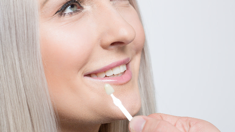 Woman getting Veneers | Southern Dental Group