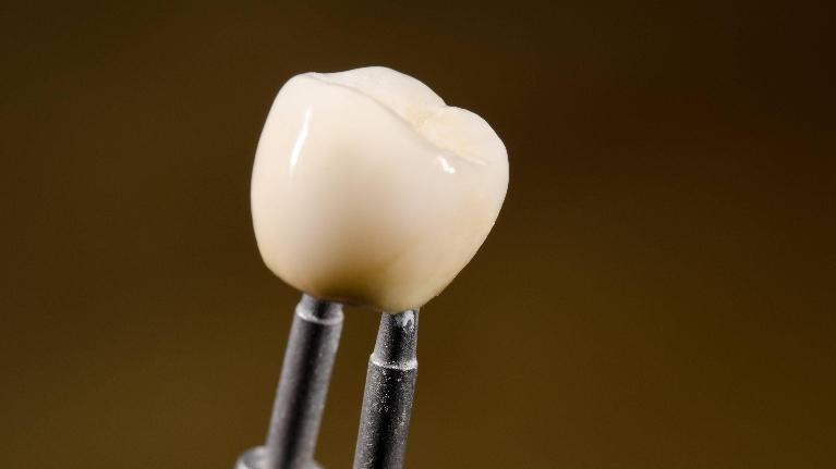 Tooth | Cerec crowns in Somerset