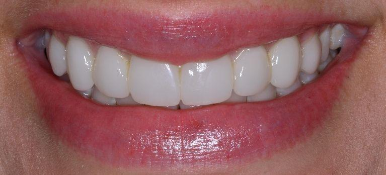 no prep veneers | somerset ky