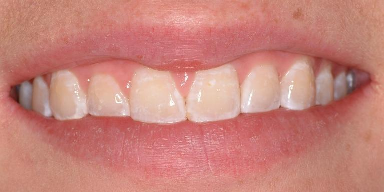 Correcting-Discolored-Teeth-Before-Image